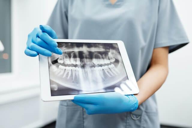 Tandkirurgi hos Faxe Bugt Tandklinik